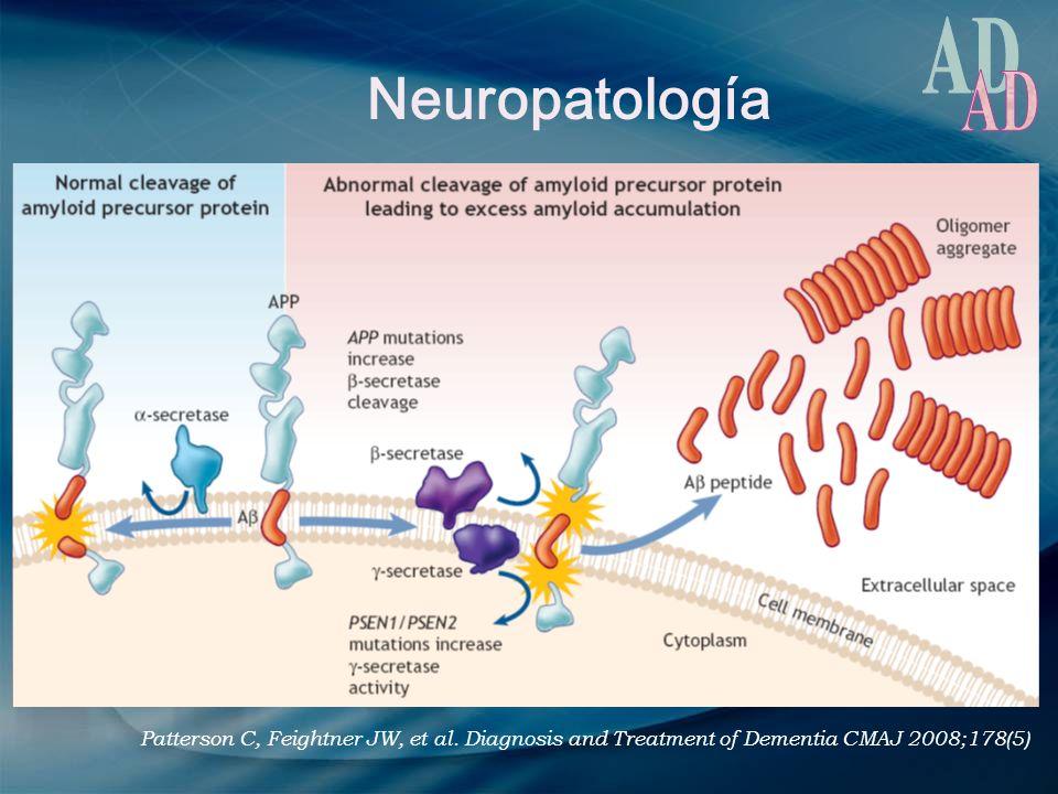 Neuropatología Patterson C, Feightner JW, et al. Diagnosis and Treatment of Dementia CMAJ 2008;178(5)
