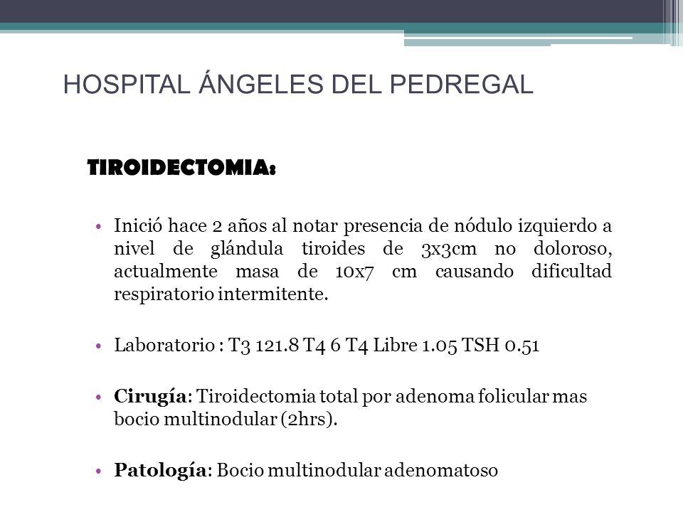 TIROIDECTOMIA: Inició hace 2 años al notar presencia de nódulo izquierdo a nivel de glándula tiroides de 3x3cm no doloroso, actualmente masa de 10x7 c