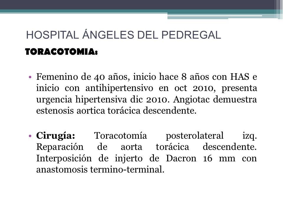 TORACOTOMIA: Femenino de 40 años, inicio hace 8 años con HAS e inicio con antihipertensivo en oct 2010, presenta urgencia hipertensiva dic 2010. Angio