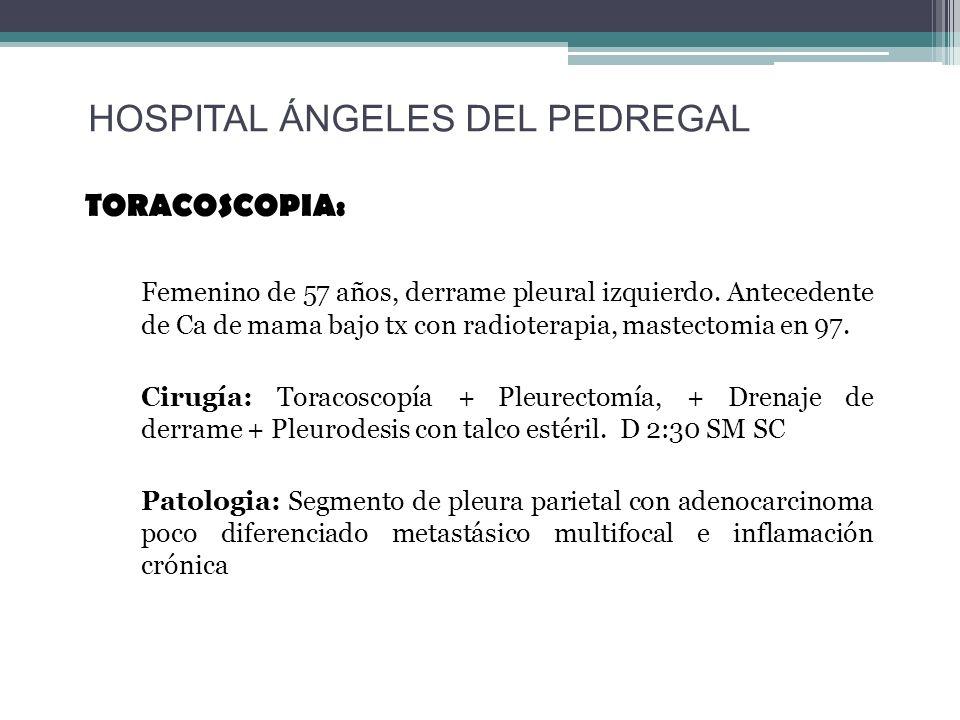 TORACOSCOPIA: Femenino de 57 años, derrame pleural izquierdo. Antecedente de Ca de mama bajo tx con radioterapia, mastectomia en 97. Cirugía: Toracosc