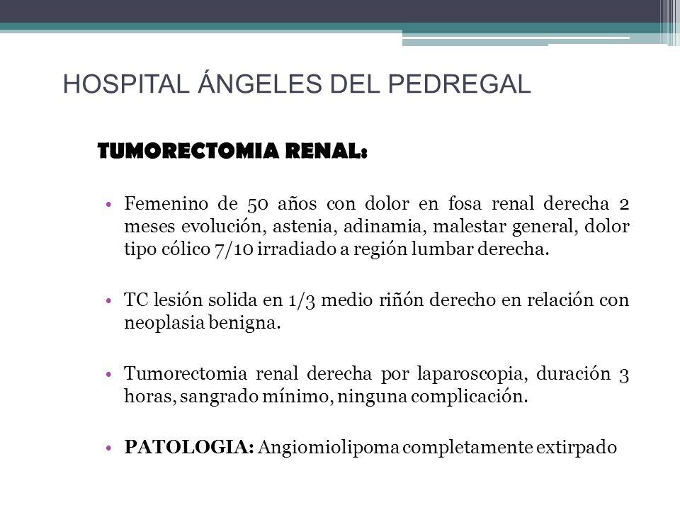 TUMORECTOMIA RENAL: Femenino de 50 años con dolor en fosa renal derecha 2 meses evolución, astenia, adinamia, malestar general, dolor tipo cólico 7/10