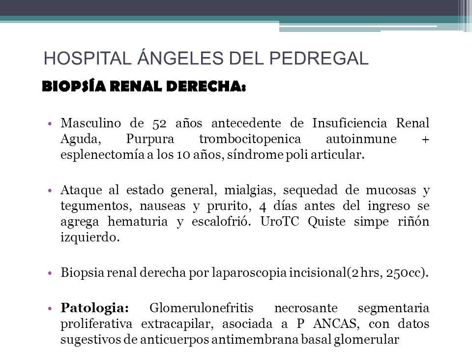BIOPSÍA RENAL DERECHA: Masculino de 52 años antecedente de Insuficiencia Renal Aguda, Purpura trombocitopenica autoinmune + esplenectomía a los 10 año