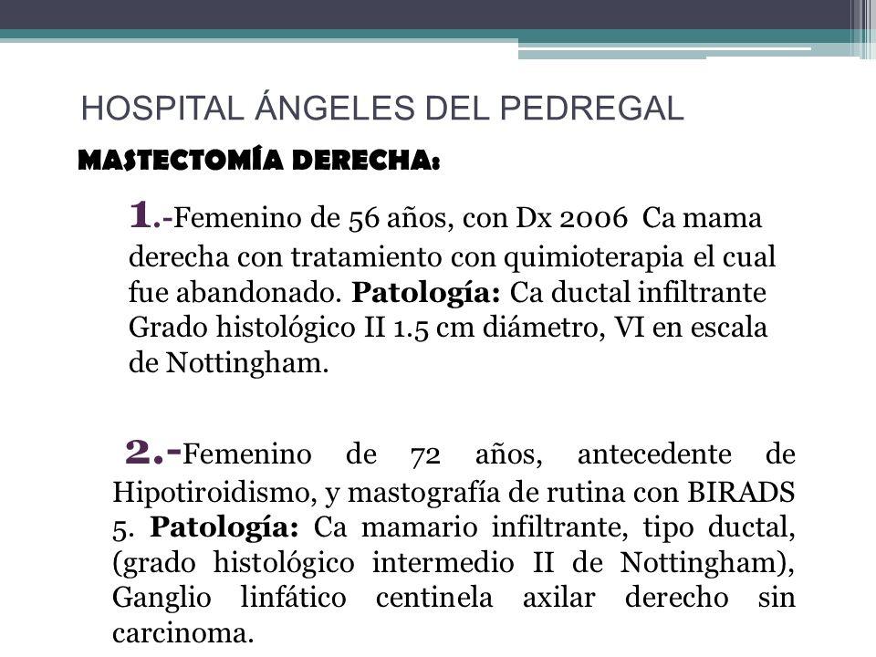 MASTECTOMÍA DERECHA: 1.-Femenino de 56 años, con Dx 2006 Ca mama derecha con tratamiento con quimioterapia el cual fue abandonado. Patología: Ca ducta
