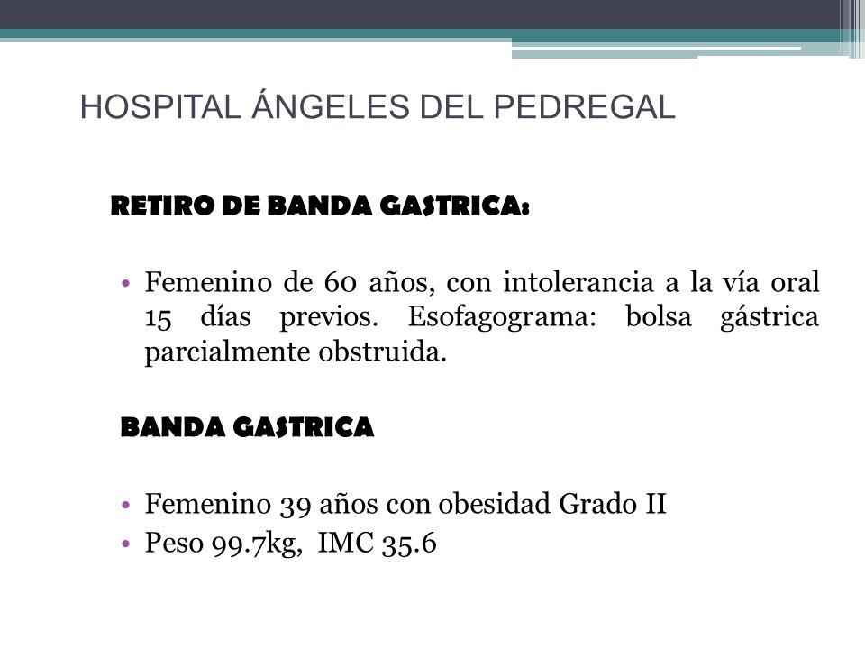 RETIRO DE BANDA GASTRICA: Femenino de 60 años, con intolerancia a la vía oral 15 días previos. Esofagograma: bolsa gástrica parcialmente obstruida. BA