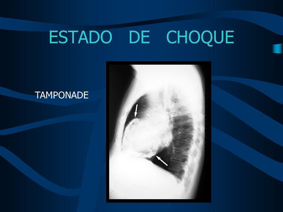 ESTADO DE CHOQUE TAMPONADE Tratamiento Drenaje urgente PERICARDIOCENTESIS QUIRURGICO