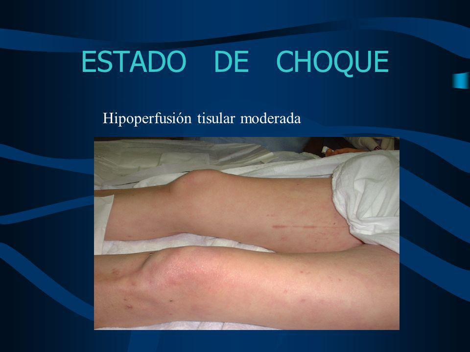 ESTADO DE CHOQUE Hipoperfusión tisular severa