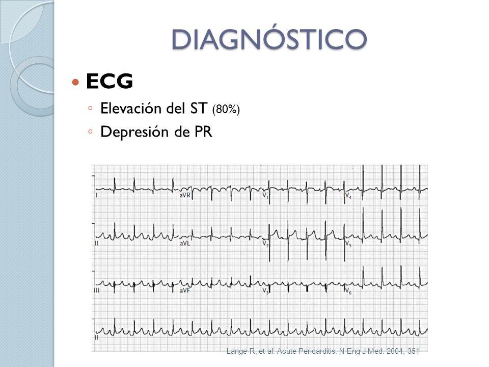 DIAGNÓSTICO ECG Elevación del ST (80%) Depresión de PR Lange R, et al. Acute Pericarditis. N Eng J Med. 2004; 351