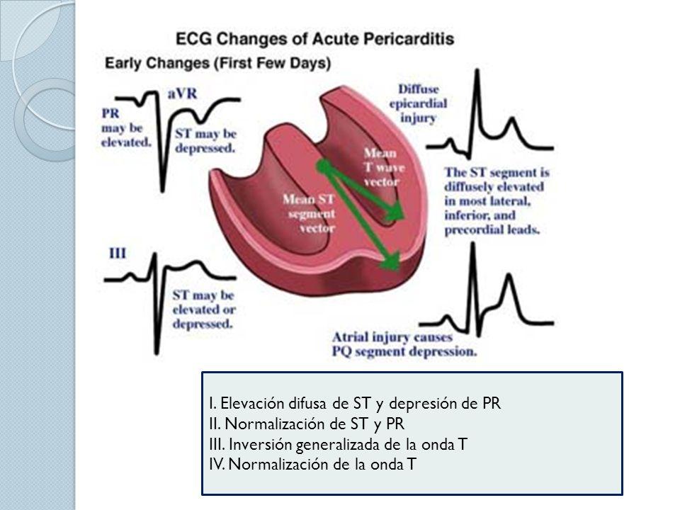 I. Elevación difusa de ST y depresión de PR II. Normalización de ST y PR III. Inversión generalizada de la onda T IV. Normalización de la onda T