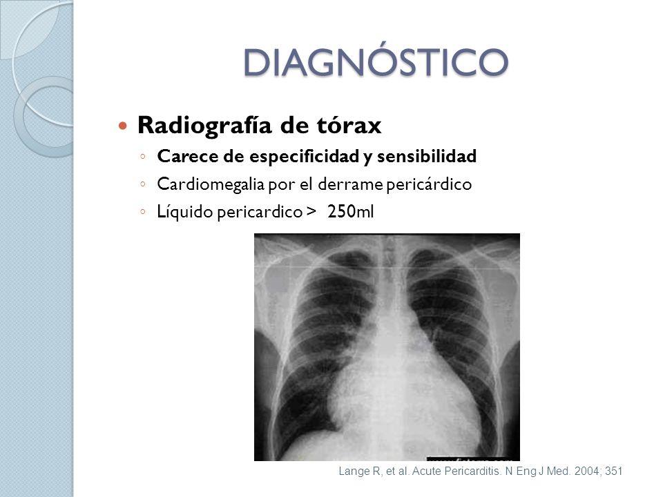 DIAGNÓSTICO Radiografía de tórax Carece de especificidad y sensibilidad Cardiomegalia por el derrame pericárdico Líquido pericardico > 250ml Lange R,
