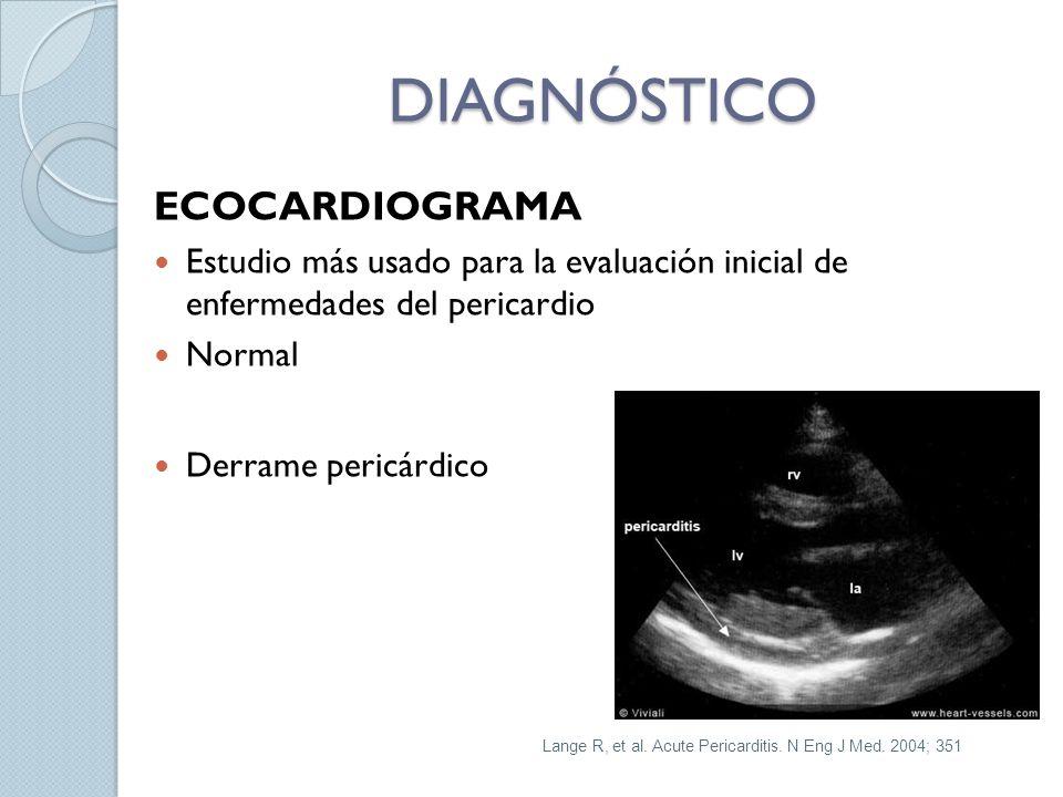 DIAGNÓSTICO ECOCARDIOGRAMA Estudio más usado para la evaluación inicial de enfermedades del pericardio Normal Derrame pericárdico Lange R, et al. Acut
