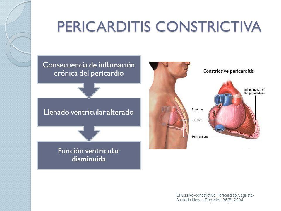 Función ventricular disminuida Llenado ventricular alterado Consecuencia de inflamación crónica del pericardio PERICARDITIS CONSTRICTIVA Effussive-con