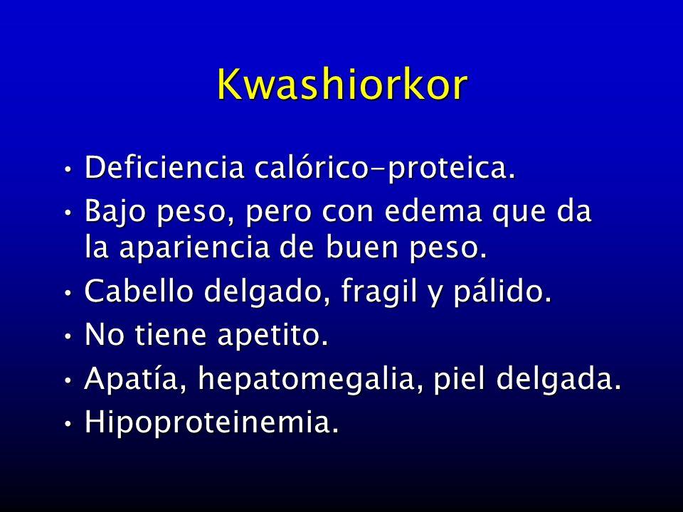 Kwashiorkor Deficiencia calórico-proteica.Deficiencia calórico-proteica. Bajo peso, pero con edema que da la apariencia de buen peso.Bajo peso, pero c