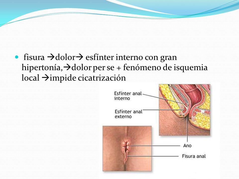 fisura dolor esfínter interno con gran hipertonía, dolor per se + fenómeno de isquemia local impide cicatrización