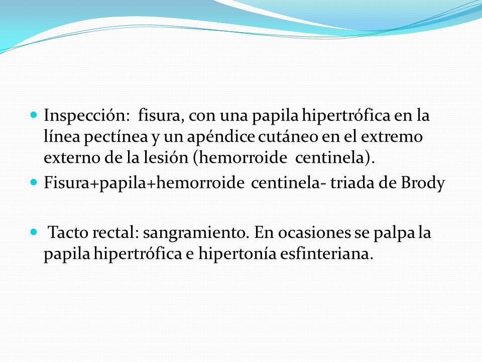 Inspección: fisura, con una papila hipertrófica en la línea pectínea y un apéndice cutáneo en el extremo externo de la lesión (hemorroide centinela).