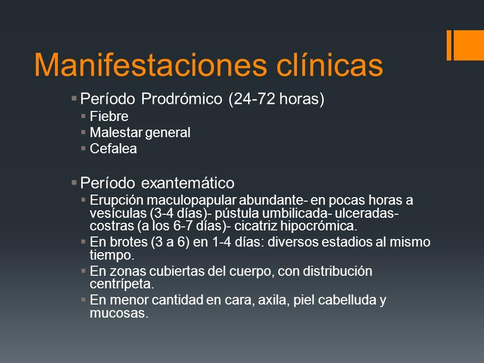Manifestaciones clínicas Período Prodrómico (24-72 horas) Fiebre Malestar general Cefalea Período exantemático Erupción maculopapular abundante- en po