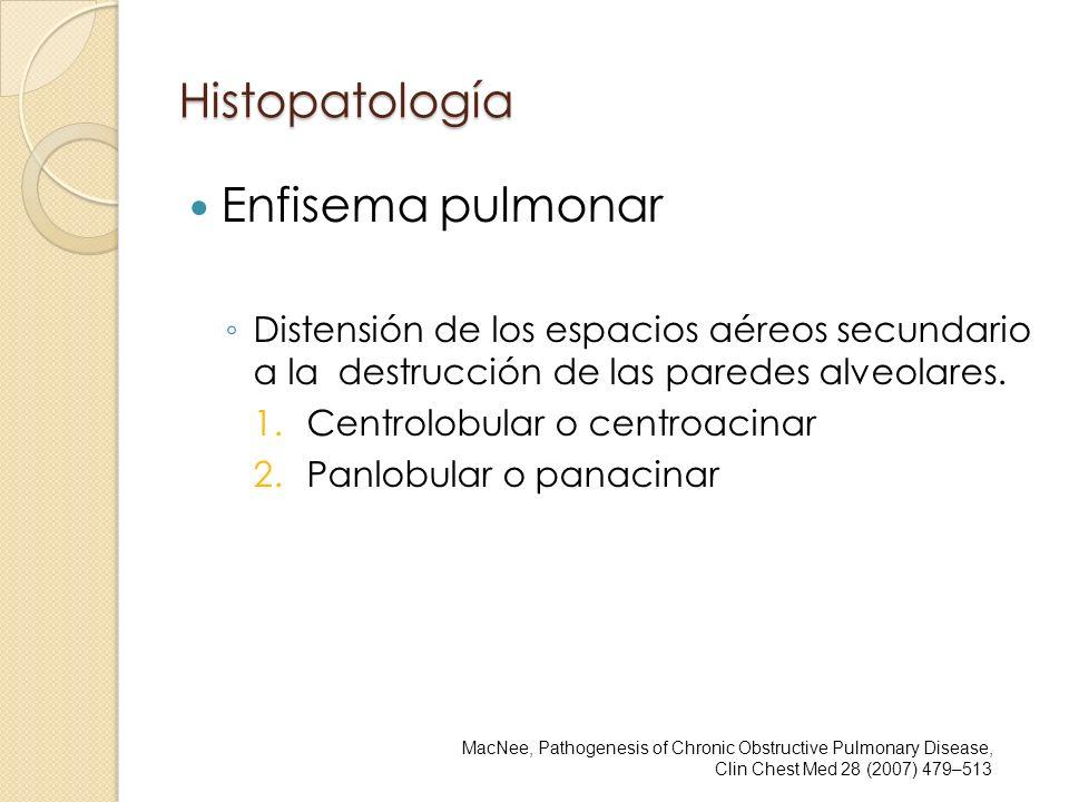 Histopatología Enfisema pulmonar Distensión de los espacios aéreos secundario a la destrucción de las paredes alveolares. 1.Centrolobular o centroacin