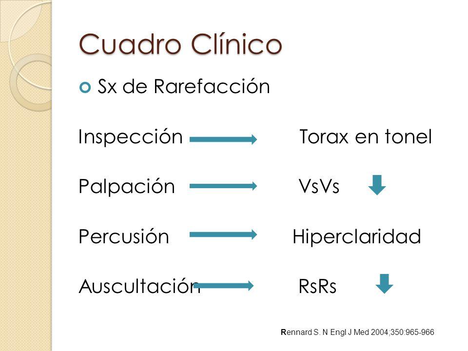 Cuadro Clínico Sx de Rarefacción Inspección Torax en tonel Palpación VsVs Percusión Hiperclaridad Auscultación RsRs Rennard S. N Engl J Med 2004;350:9