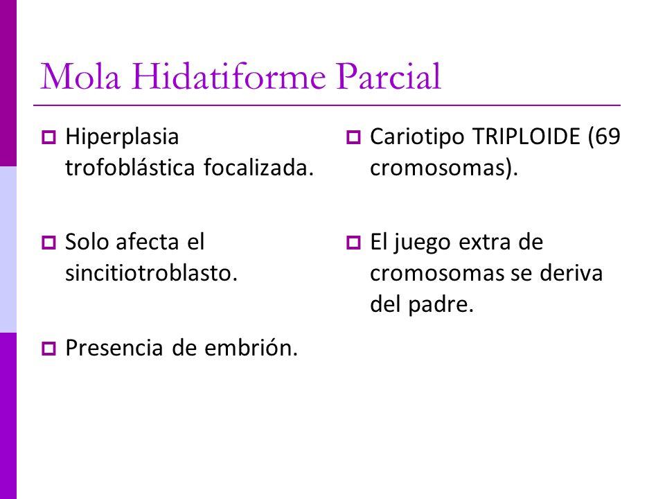 Mola Hidatiforme Parcial Hiperplasia trofoblástica focalizada. Solo afecta el sincitiotroblasto. Presencia de embrión. Cariotipo TRIPLOIDE (69 cromoso