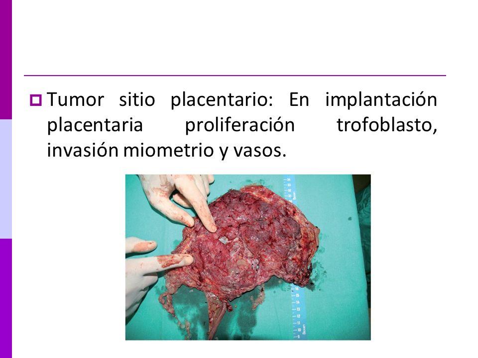 Tumor sitio placentario: En implantación placentaria proliferación trofoblasto, invasión miometrio y vasos.