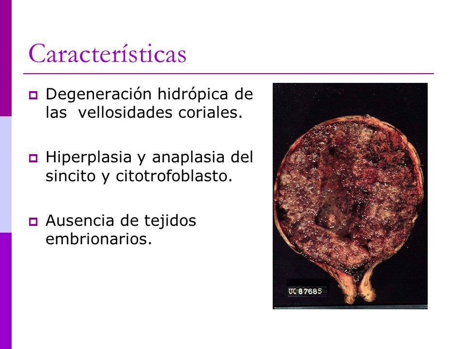 Características Degeneración hidrópica de las vellosidades coriales. Hiperplasia y anaplasia del sincito y citotrofoblasto. Ausencia de tejidos embrio