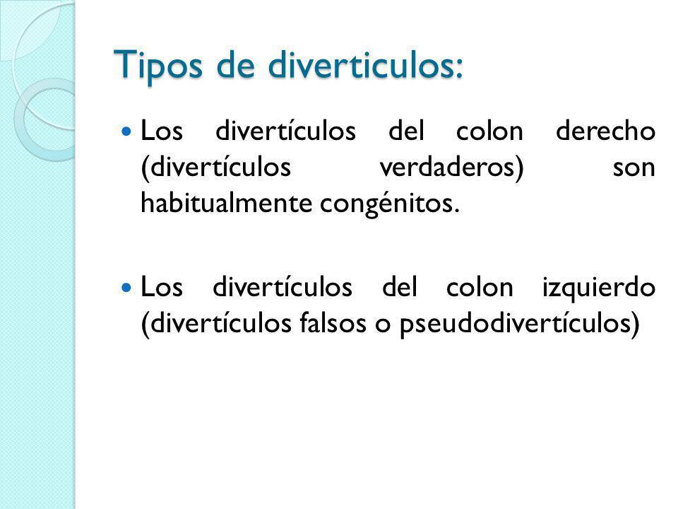 Tipos de diverticulos: Los divertículos del colon derecho (divertículos verdaderos) son habitualmente congénitos. Los divertículos del colon izquierdo