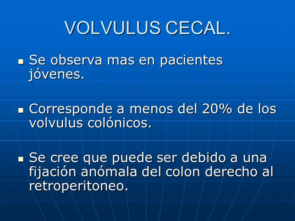 VOLVULUS CECAL. Se observa mas en pacientes jóvenes.