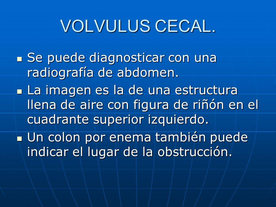 VOLVULUS CECAL. Se puede diagnosticar con una radiografía de abdomen.