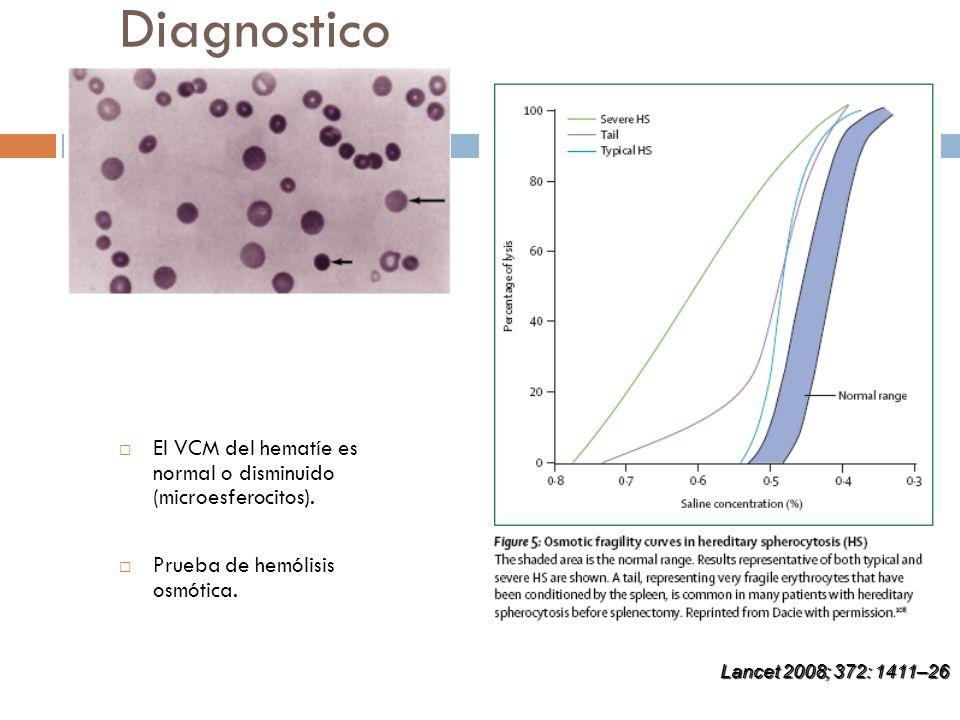 Diagnostico El VCM del hematíe es normal o disminuido (microesferocitos). Prueba de hemólisis osmótica. Lancet 2008; 372: 1411–26