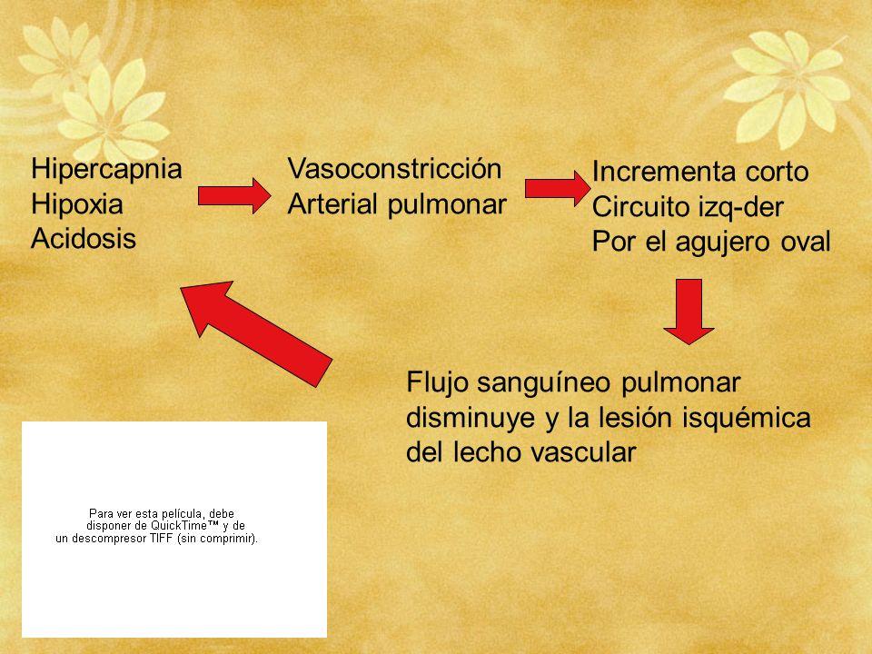 Hipoxia Acidosis Vasoconstricción Arterial pulmonar Incrementa corto Circuito izq-der Por el agujero oval Flujo sanguíneo pulmonar disminuye y la lesi