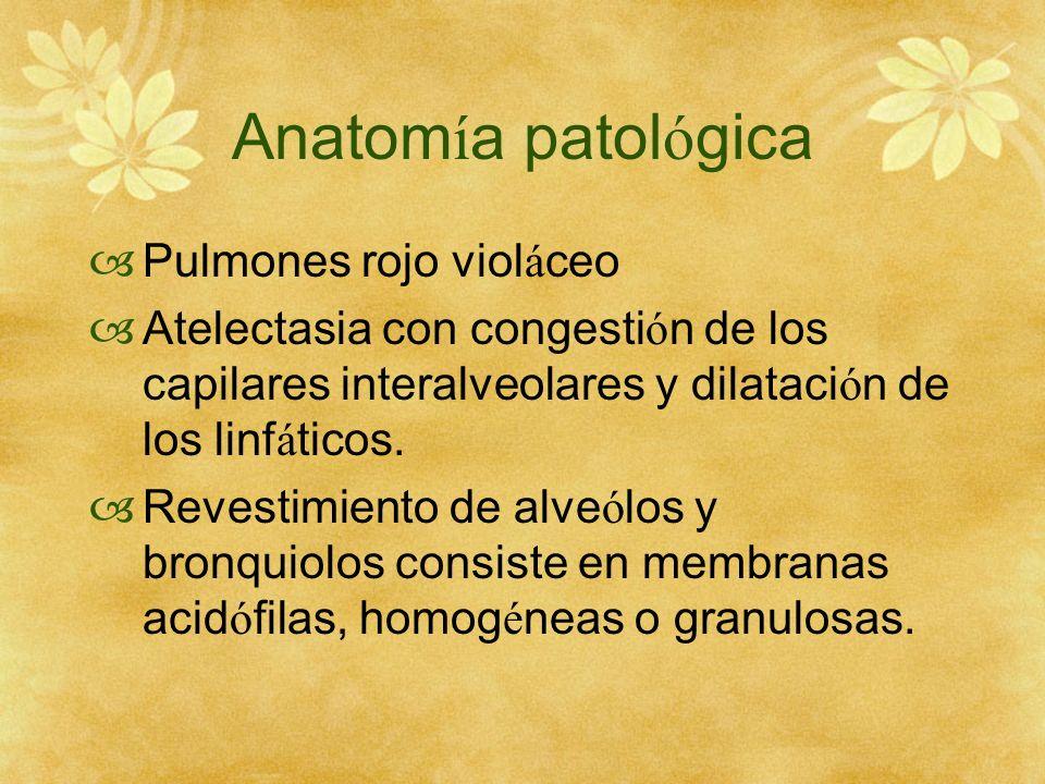 Anatom í a patol ó gica Pulmones rojo viol á ceo Atelectasia con congesti ó n de los capilares interalveolares y dilataci ó n de los linf á ticos. Rev