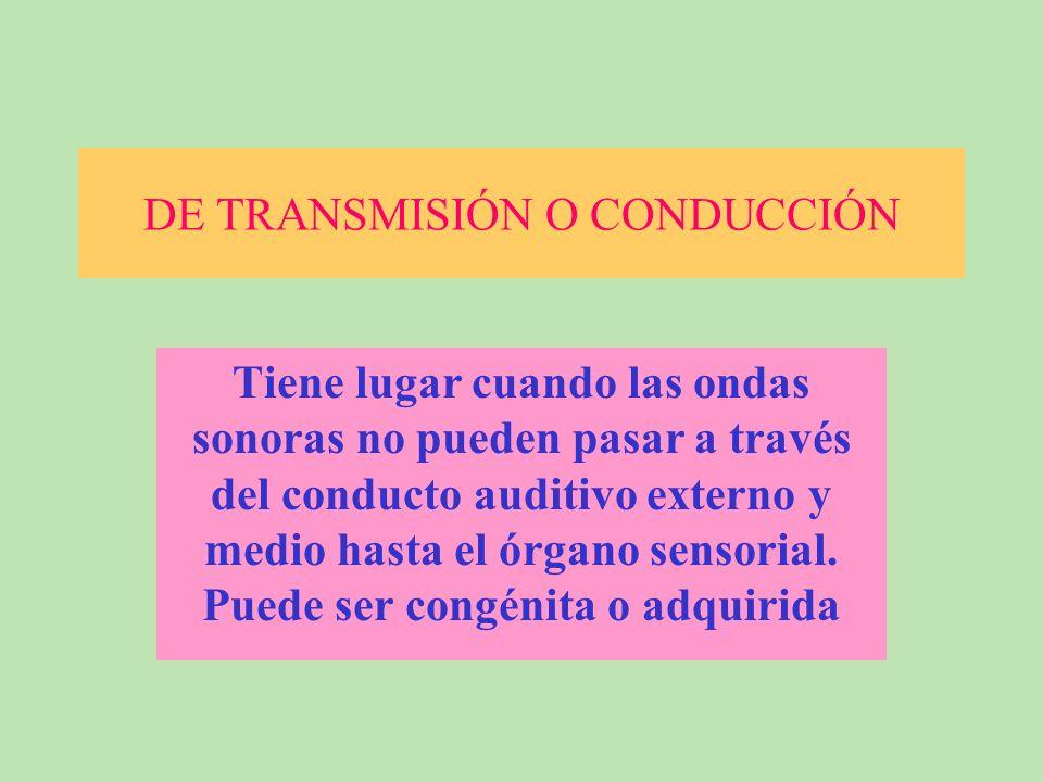 DE TRANSMISIÓN O CONDUCCIÓN Tiene lugar cuando las ondas sonoras no pueden pasar a través del conducto auditivo externo y medio hasta el órgano sensorial.