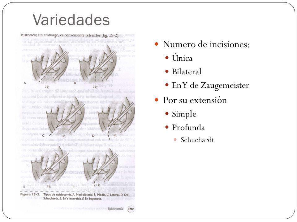 Variedades Numero de incisiones: Única Bilateral En Y de Zaugemeister Por su extensión Simple Profunda Schuchardt