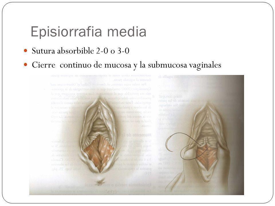 Episiorrafia media Sutura absorbible 2-0 o 3-0 Cierre continuo de mucosa y la submucosa vaginales