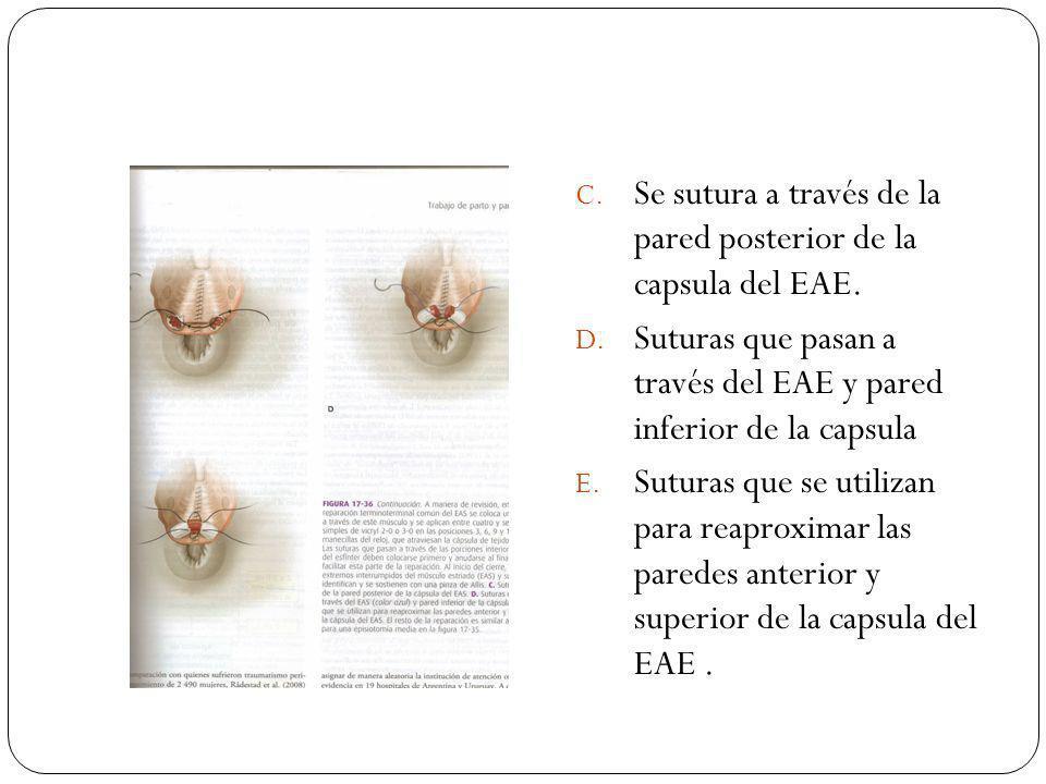 C. Se sutura a través de la pared posterior de la capsula del EAE. D. Suturas que pasan a través del EAE y pared inferior de la capsula E. Suturas que