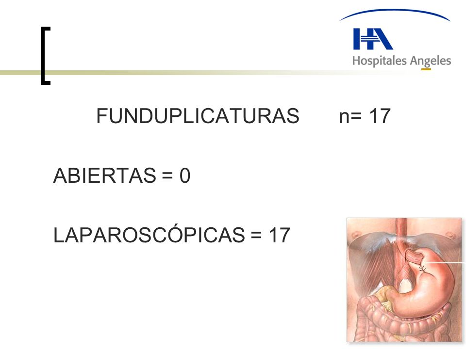 FUNDUPLICATURAS n= 17 ABIERTAS = 0 LAPAROSCÓPICAS = 17