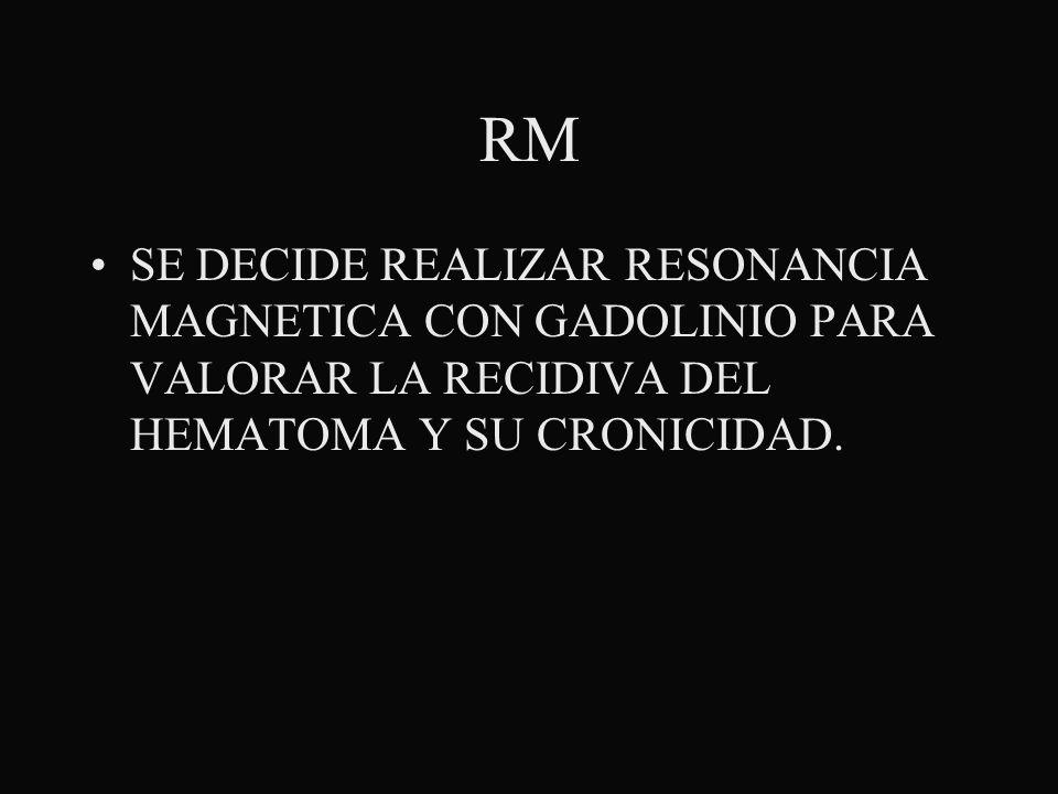 RM SE DECIDE REALIZAR RESONANCIA MAGNETICA CON GADOLINIO PARA VALORAR LA RECIDIVA DEL HEMATOMA Y SU CRONICIDAD.