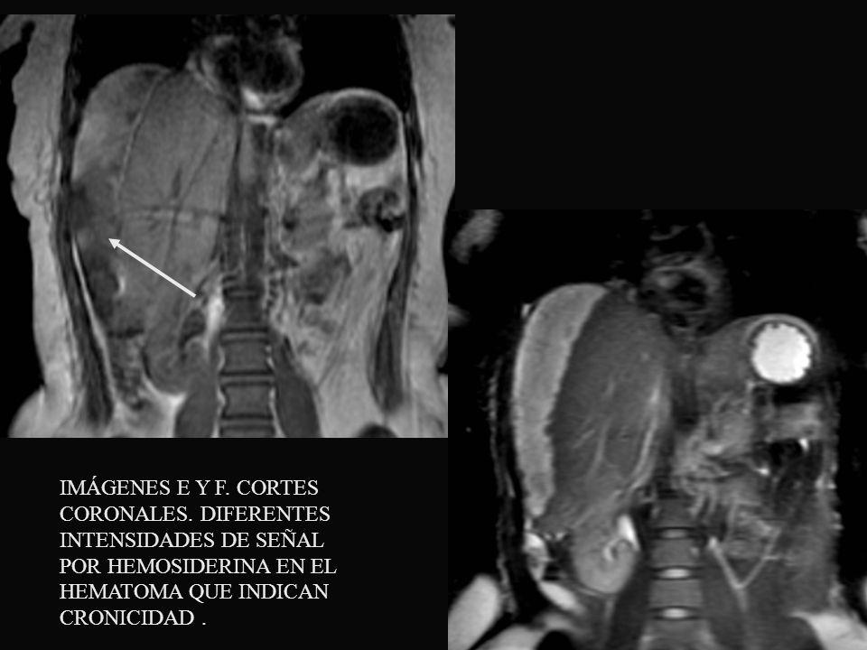 IMÁGENES E Y F. CORTES CORONALES. DIFERENTES INTENSIDADES DE SEÑAL POR HEMOSIDERINA EN EL HEMATOMA QUE INDICAN CRONICIDAD.