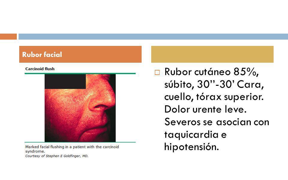 Rubor cutáneo 85%, súbito, 30-30 Cara, cuello, tórax superior. Dolor urente leve. Severos se asocian con taquicardia e hipotensión. Rubor facial