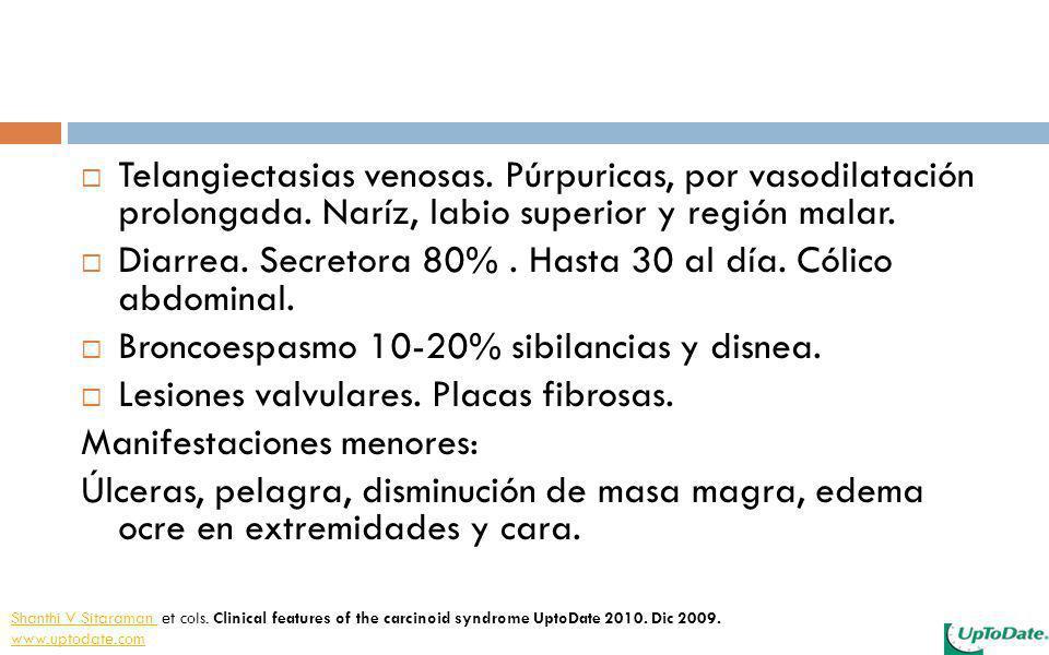 Telangiectasias venosas. Púrpuricas, por vasodilatación prolongada. Naríz, labio superior y región malar. Diarrea. Secretora 80%. Hasta 30 al día. Cól