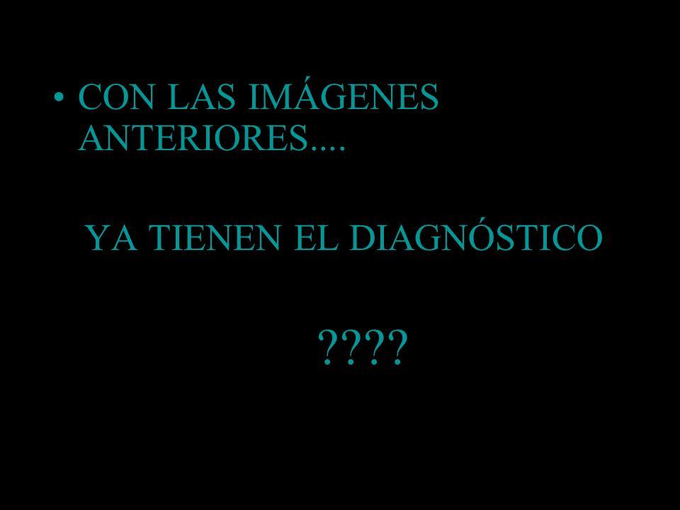 CON LAS IMÁGENES ANTERIORES.... YA TIENEN EL DIAGNÓSTICO ????