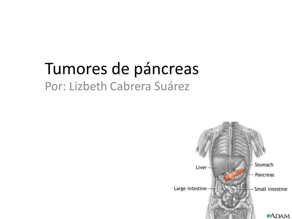Tumores de páncreas Por: Lizbeth Cabrera Suárez