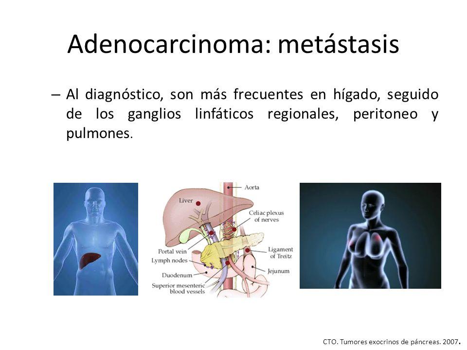 Adenocarcinoma: metástasis – Al diagnóstico, son más frecuentes en hígado, seguido de los ganglios linfáticos regionales, peritoneo y pulmones. CTO. T
