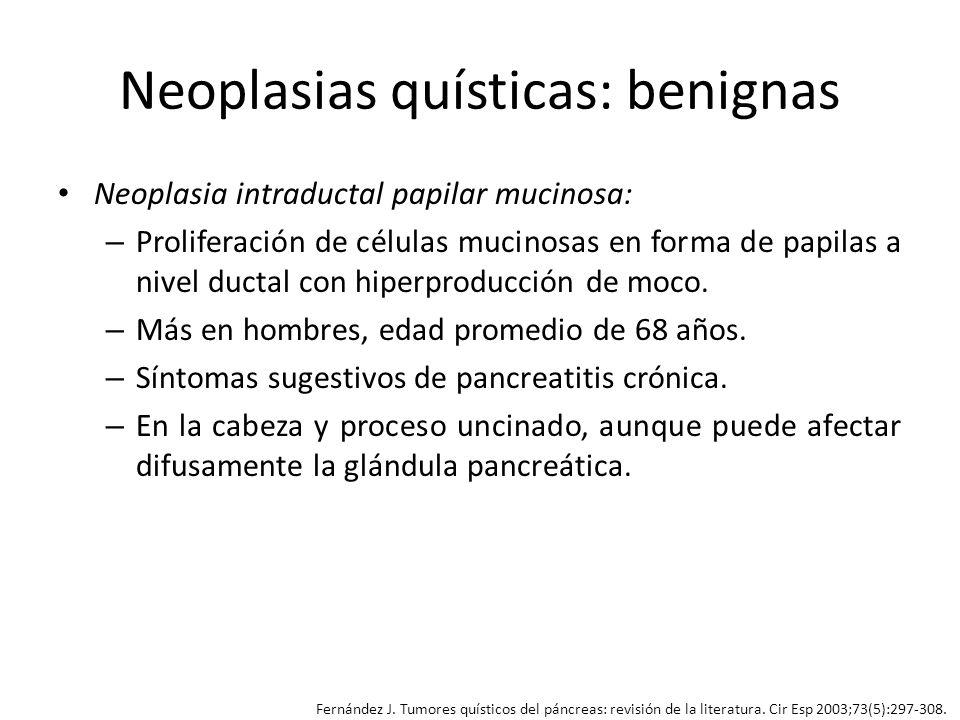Neoplasias quísticas: benignas Neoplasia intraductal papilar mucinosa: – Proliferación de células mucinosas en forma de papilas a nivel ductal con hip