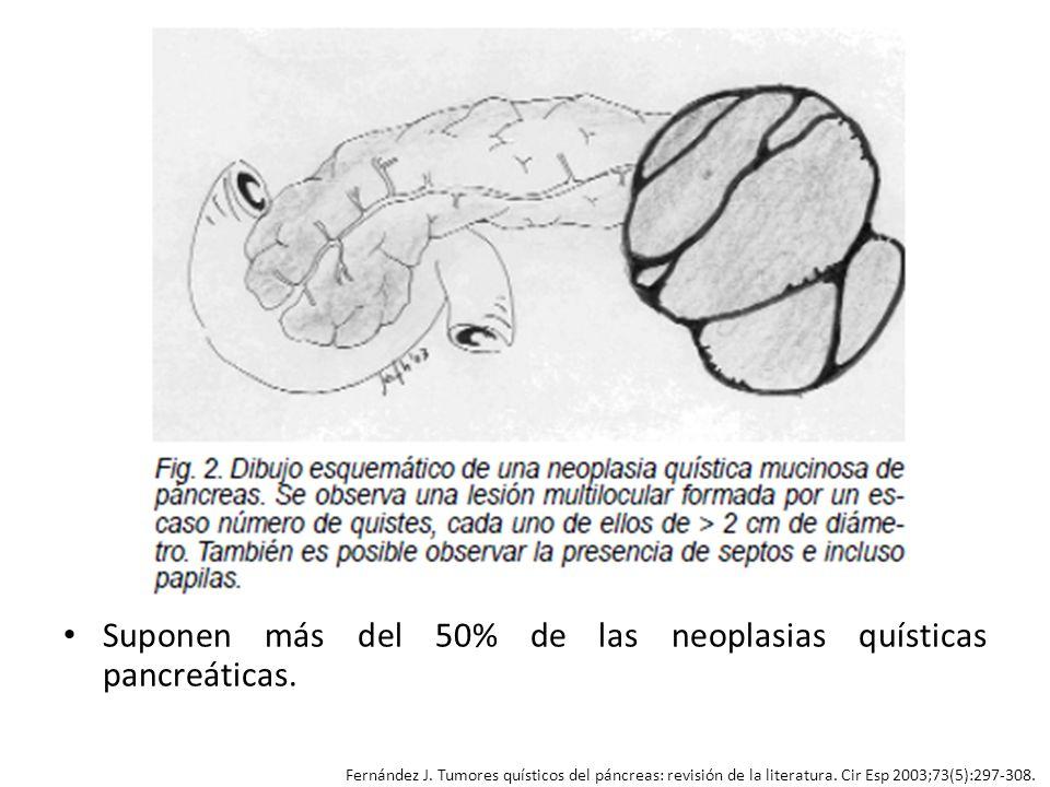 Suponen más del 50% de las neoplasias quísticas pancreáticas. Fernández J. Tumores quísticos del páncreas: revisión de la literatura. Cir Esp 2003;73(