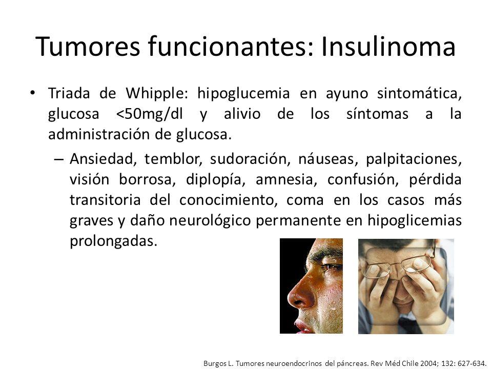 Tumores funcionantes: Insulinoma Diagnóstico: se confirma por la asociación de hipoglicemia e hiperinsulinismo.