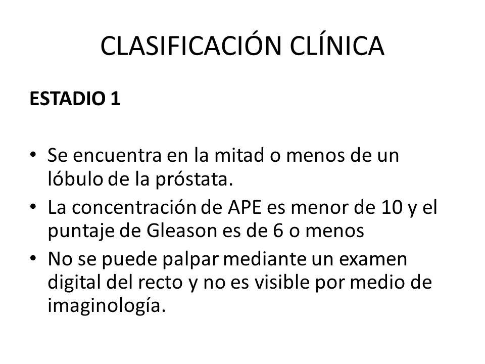 CLASIFICACIÓN CLÍNICA ESTADIO 1 Se encuentra en la mitad o menos de un lóbulo de la próstata. La concentración de APE es menor de 10 y el puntaje de G