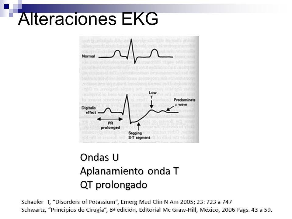 Alteraciones EKG Ondas U Aplanamiento onda T QT prolongado Schaefer T, Disorders of Potassium, Emerg Med Clin N Am 2005; 23: 723 a 747 Schwartz, Princ