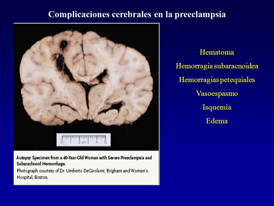 Complicaciones cerebrales en la preeclampsia Hematoma Hemorragia subaracnoidea Hemorragias petequiales Vasoespasmo Isquemia Edema