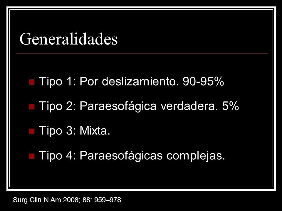 Generalidades Tipo 1: Por deslizamiento.90-95% Tipo 2: Paraesofágica verdadera.