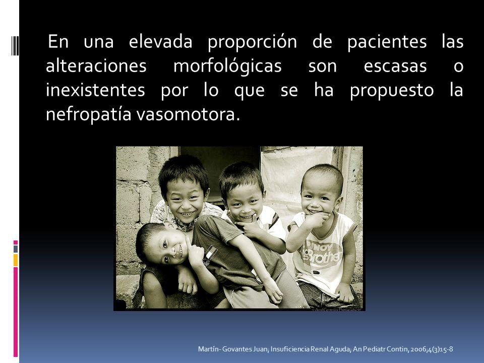 En una elevada proporción de pacientes las alteraciones morfológicas son escasas o inexistentes por lo que se ha propuesto la nefropatía vasomotora. M